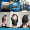 Minoxidil Sulphate White Raws for Treating Hair Loss CAS: 83701-22-8