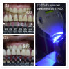 Vertical Clinic Use Professional Teeth Whiten System