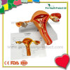 Normal & Pathological 3D plastic Ovary Uterus Anatomical Model
