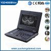 CE vétérinaire Ysd4000b-Vet approuvé de matériel d'ultrason de Digitals de dispositif diagnostique
