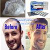 Il migliore Anti-Estrogeno Finasteride steroide di qualità per perdita di capelli