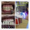 Les dents verticales d'utilisation de clinique blanchissent le système