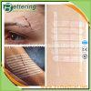 6*100mm Micropore Hypoallergenic Skin Closure из Wound Strips