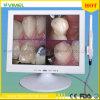 4.0 메가 화소 치과 안 경구 사진기 15  의학 내시경
