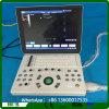 중국 휴대용 초음파 기계 가격 & 초음파 스캐너 Mslpu33