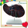 Modelo humano anatómico del hígado con el modelo de la vesícula biliar
