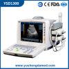PC Plattform-preiswertester beweglicher voller Digital-medizinischer Maschinen-Ultraschall-Scanner