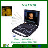 preço Mslcu18 da máquina do ultra-som de Doppler da cor 3D/4D