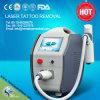 1-10Hz販売のためのより高い頻度ND YAGの入れ墨の取り外しレーザー機械