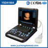 Ce équipement de l'hôpital Medical Diagnostic Ultrasounic Machine Digital Laptop Ultrasound