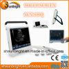 Precio al por mayor 2D 3D Ob / Gyn Pantalla táctil 15 Máquina de ultrasonido portátil / Cardiac portátil B modo de diagnóstico de ultrasonido Precio