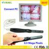 Камера зубоврачебного Endoscope Intra устно с входным сигналом USB