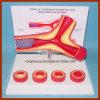 Éducation Anatomie Maladie humaine Modèle anatomique Artérite pharmaceutique