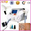 NG YAGレーザーの洗浄の眉毛機械