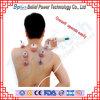 Ahuecamiento plástico médico tradicional chino de la terapia del vacío