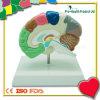 의학 교육 플라스틱 두뇌 모형