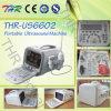 Scanner ultrasonique médical d'échographie de l'hôpital (THR-US6602)