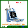 新しいType携帯用Ultrasound Machine Human/Animal Softwave Mslpu27