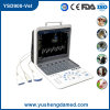 3D 4D Color Doppler Handheld Digital Ultrasound CER-ISO FDA Approved Ysd900-Vet