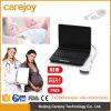 판매 Candice를 위한 가득 차있는 디지털 휴대용 초음파 스캐너 기계