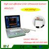 2016最も貴重な携帯用カラードップラー超音波のスキャンナー(MSLCU31V)
