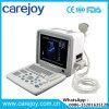 Scanner portatif approuvé Rus-9000b-Stella d'ultrason de la CE