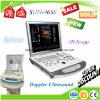 Ультразвук Doppler цвета компьтер-книжки Sun-906s, портативный блок развертки ультразвука 3D/4D