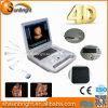 妊娠のための病院装置4Dドップラーのラップトップの超音波機械