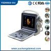 Scanner portatif approuvé d'ultrason de Doppler Digital de la couleur 4D de la CE