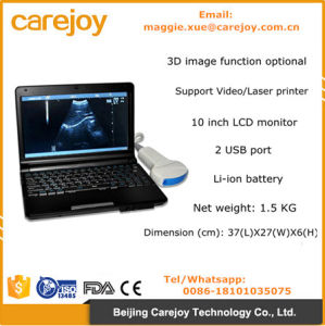 Ce Approved LCD 10.4 Inch Laptop Ultrasound Machine with Battery pictures & photos