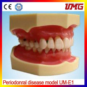China Dental Supplies Periodonral Disease Model pictures & photos