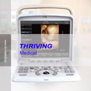Portable Color Doppler 4D Ultrasound Machine pictures & photos