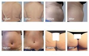 Bipolar RF Cellulite Skin Therapy Beauty Equipment pictures & photos