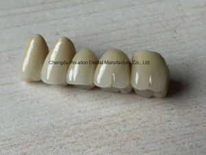 Pfm Bridge Denture for Clinic From Chinese Dental Lab pictures & photos