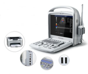 Low Cost Color Doppler Portable Ultrasound Scanner pictures & photos