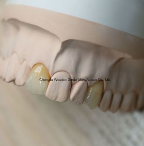 Good Quality Pfm Crown for Denture From Chinese Dental Lab pictures & photos