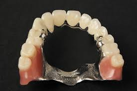 Dental Removable Prosthetic Teeth From China Dental Lab
