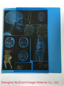 Pet Inkjet Printing Medical X-ray Blue Film pictures & photos