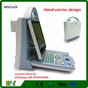 Loptop/Full Digital Color Doppler Ultrasound Scanner (MSLCU23)