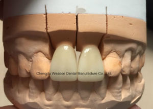 Zirconic Crown Dental pictures & photos