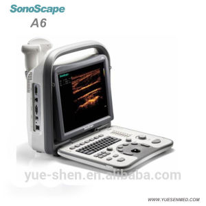 Hospital Medical Device Portable Low Price Ultrasound Machine Sonoscape A6 pictures & photos