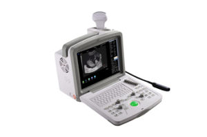 Veterinary Portable Ultrasound Scanner (WED-160V) pictures & photos
