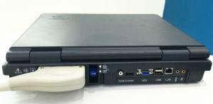 Huc-200 Portable 2D Color Doppler Ultrasound Machine Doppler Ultrasound System pictures & photos