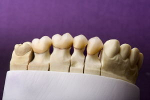 Denture Porcelain Bonded to Metal Crown pictures & photos