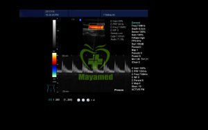 My-A034A Medical Equipment Full Digital 4D Doppler Ultrasound Scanner pictures & photos