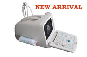 Digital Portable Ultrasound Scanner with CE pictures & photos