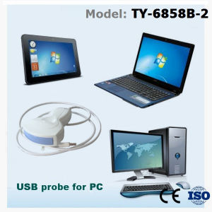 Low Cost USB Ultrasound Probe for Windows System Tablet Computer pictures & photos