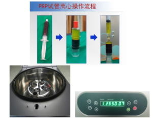 Prp Centrifuge for Beauty Salon pictures & photos