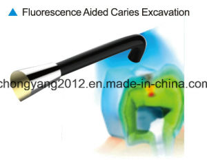 CE Certificate Dental Clinic Use New Type Dental Caries Detector pictures & photos