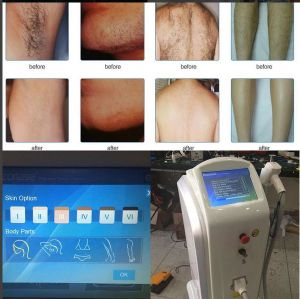 Soprano Ice 808nm Diode Laser Hair Removal Machine pictures & photos